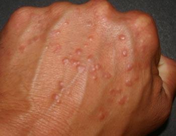 лечение от паразитов человека