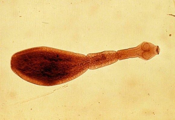 черви у человека выходят через кожу