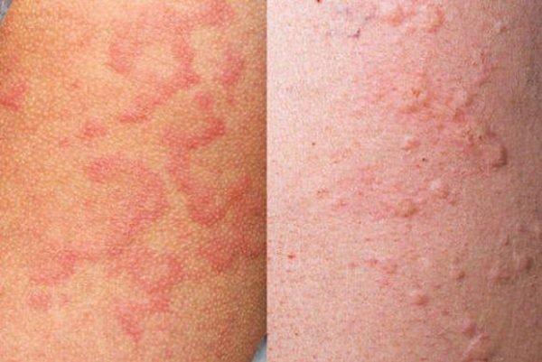 может ли быть аллергия на растительное масло