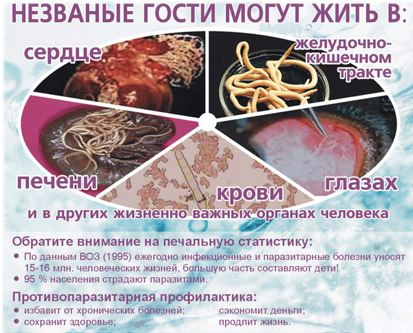 паразиты в толстом кишечнике симптомы лечение