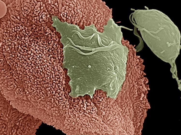 Трихомонады - простейшие микроорганизмы