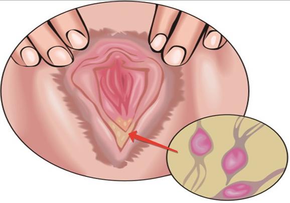 Гарденеллы и оральный секс