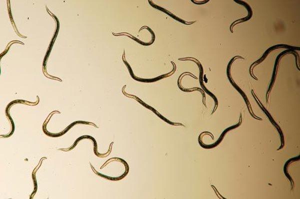 Черные глисты: бывают ли они у человека? Причины и лечение