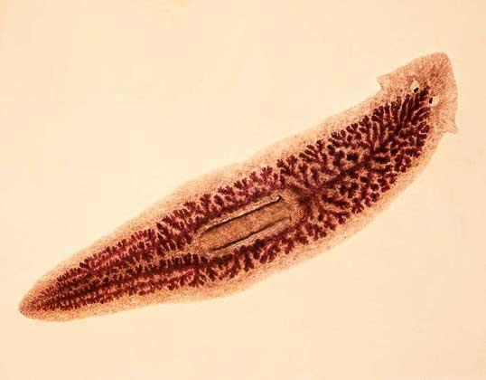 какие бывают паразиты в организме человека фото