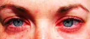 Симптомы демодекоза глаз