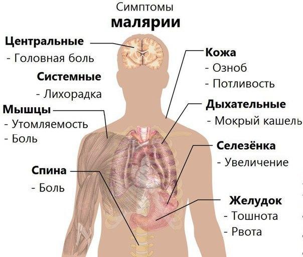 Малярия: симптомы, клиника и лечение заболевания