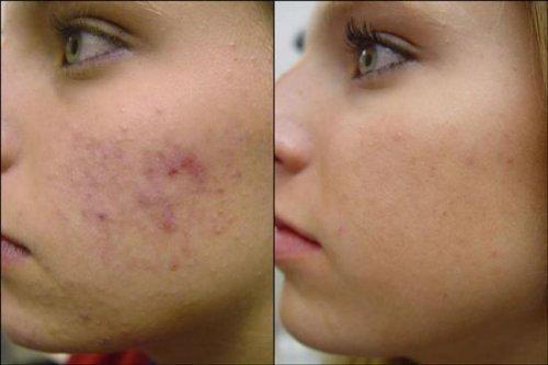 Демодекоз: лечение на лице разными способами, препараты