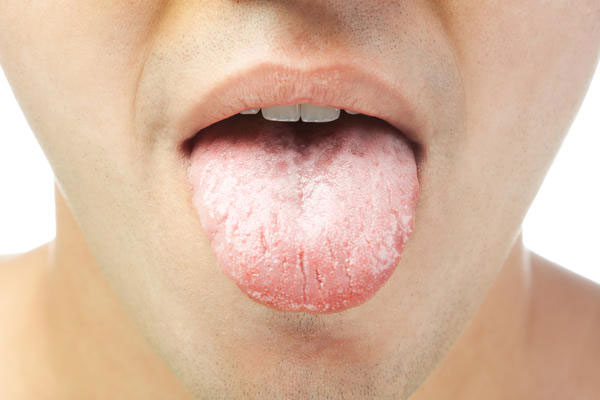 Лечение кандидоза при вич инфекции