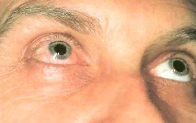 Капли для глаз при токсоплазмозе: какие лучше выбрать