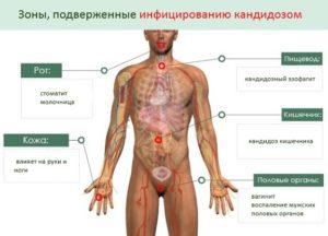 Возможные симптомы