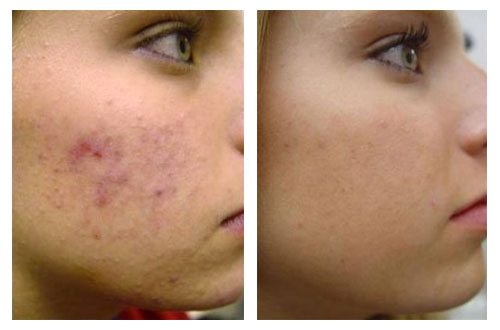 крем от демодекса на лице