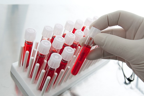 Анализ крови на лямблии: как подготовиться и сдать анализ