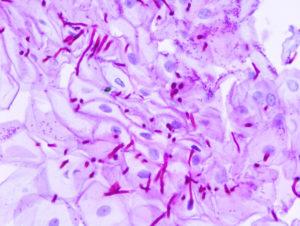 кандида под микроскопом