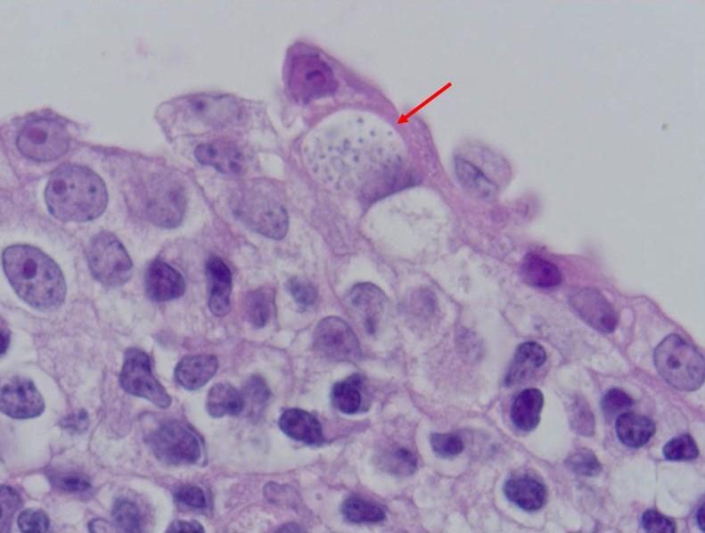 препараты от паразитов и трихомонад