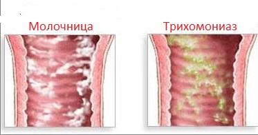 Трихомониаз и молочница отличия