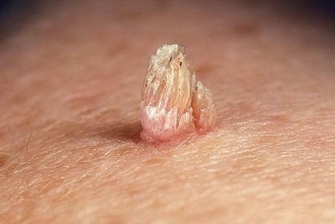 papilloma parazita