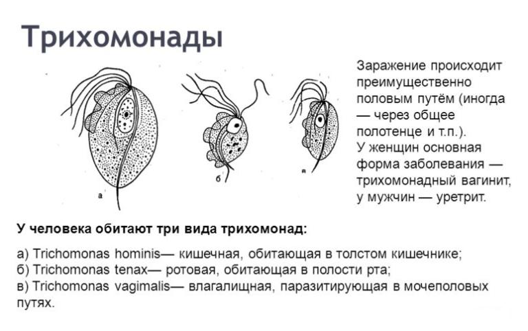 Как можно заразиться трихомониазом: пути передачи и виды