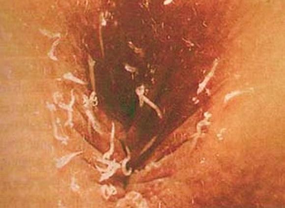 Паразиты в желудке: особенности видов и методы лечения